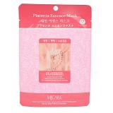 MJ CARE Sheet Mask Placenta (V) - Masker Wajah